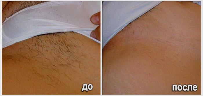 глубокое бикини фото до и после фото